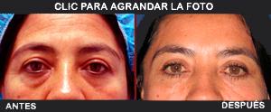 Parpados-Lina1final-AD-300