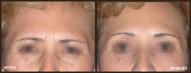 Botox-Lina_AD-640