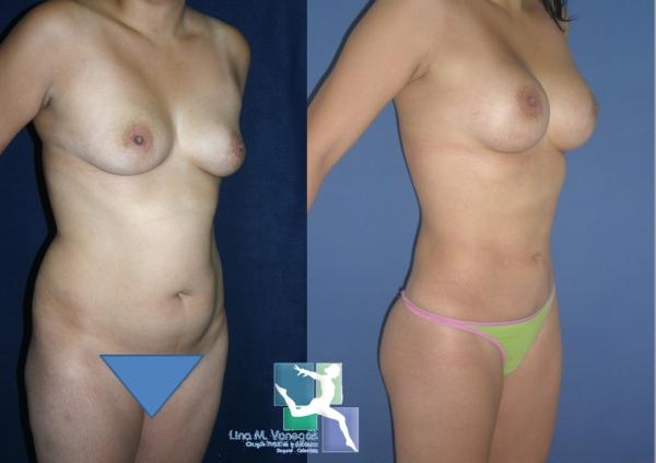 paciente de abdominoplastia liposuccion y mamoplastia en bogota