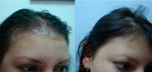 alopecia01p