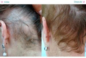 alopecia02-640
