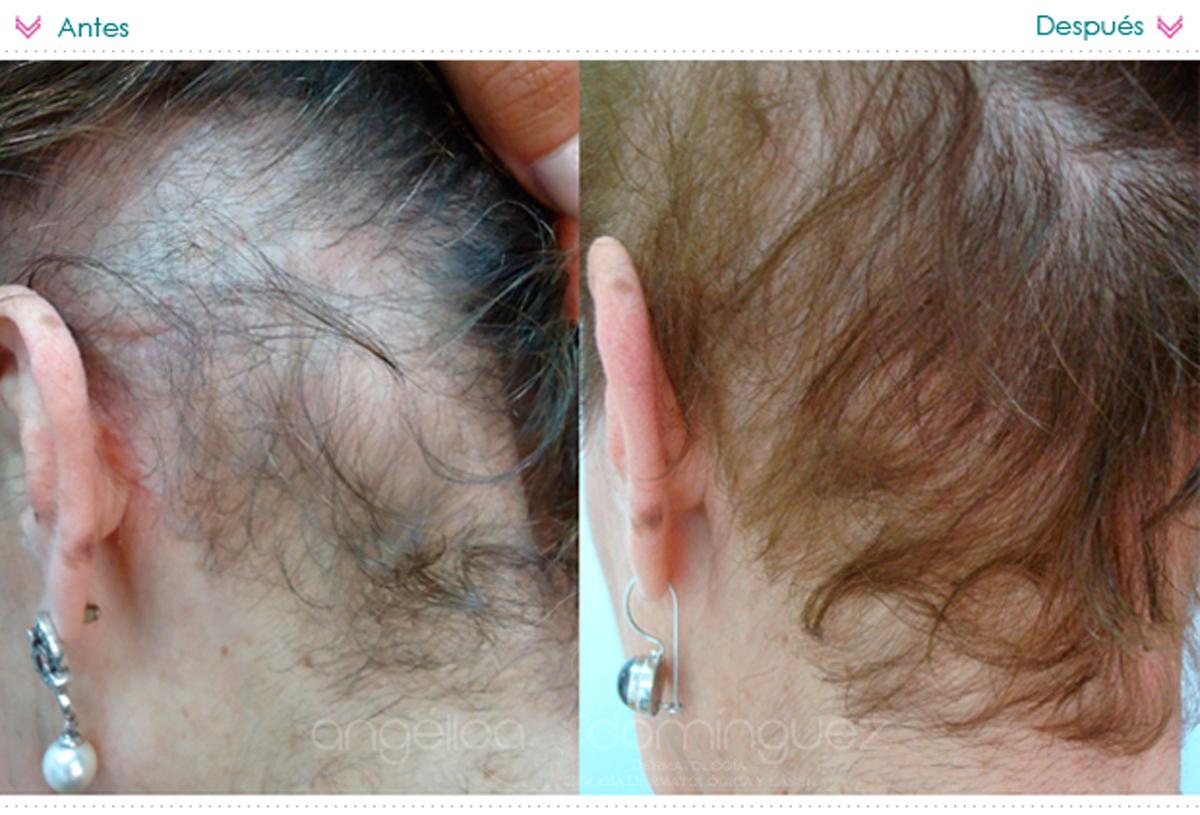 Caida del cabello despues de una cirugia