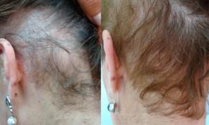 alopecia02p