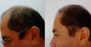 alopecia03p