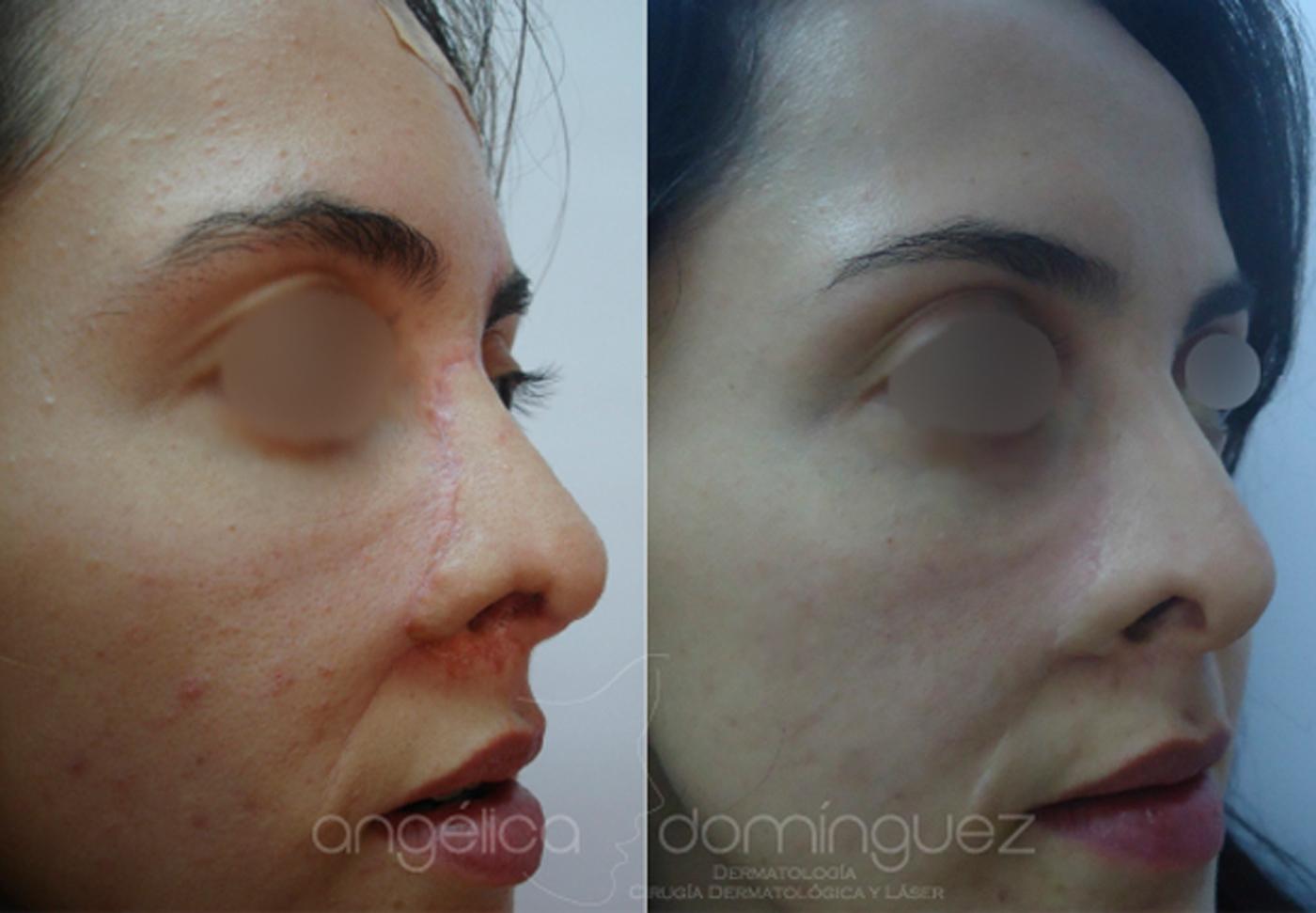 Disimular Las Cicatrices Fotos Antes Y Despu 233 S