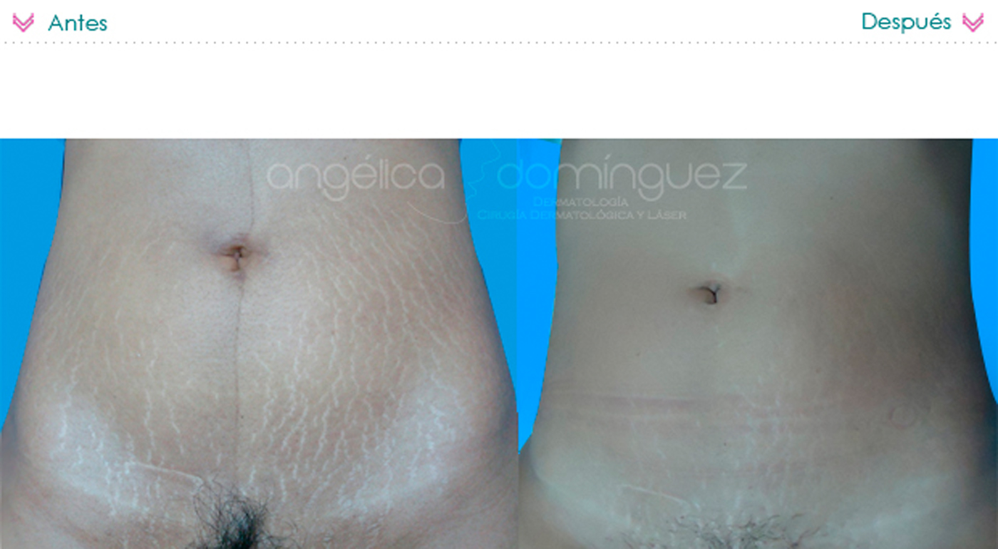 Abdominoplastia antes e depois confira dicas pictures to pin on