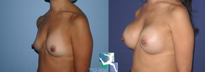 Mamoplastia de Aumento en bogota realizada por la Dra Vanegas