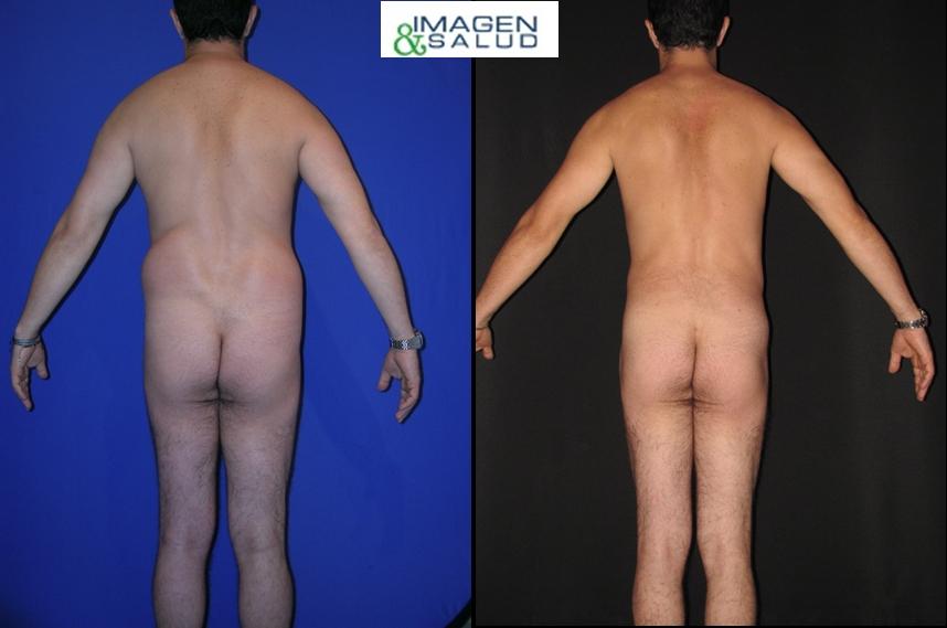 resultados de la lipolisis laser en bogota