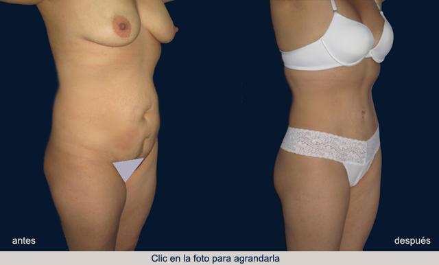 abdomen-1-AD-p