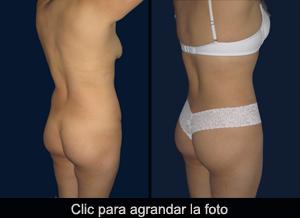 abdomen-2-AD-p