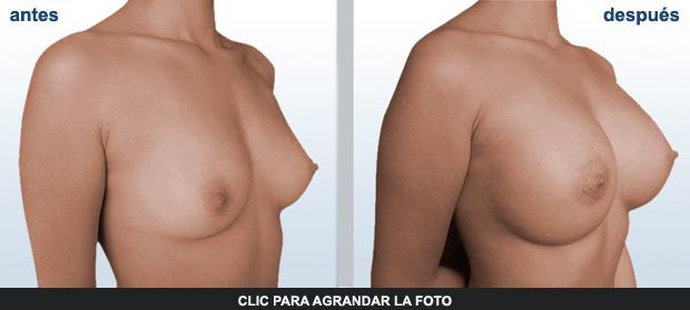 Cirugia-Mamas-Gil-p