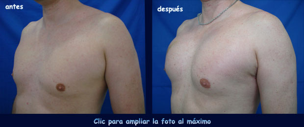 implante-pectoral-p
