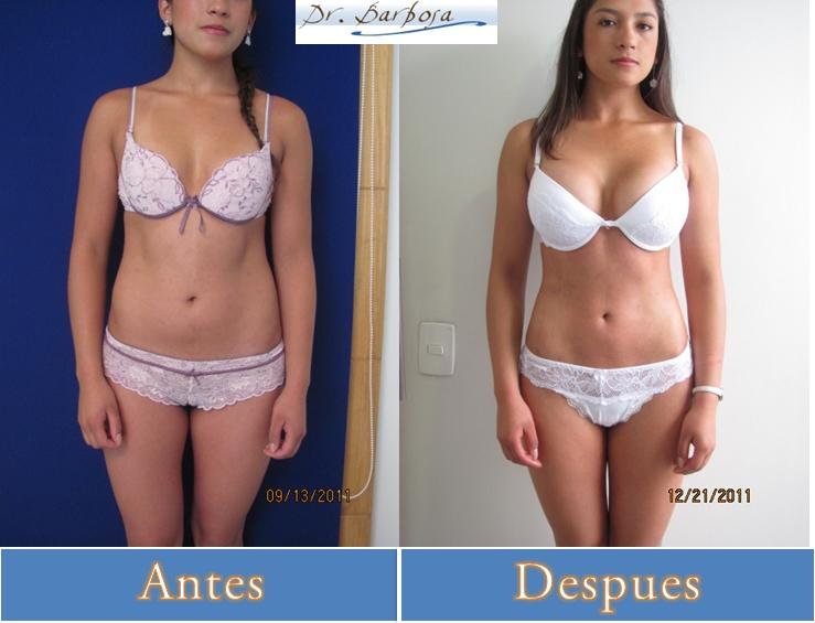 liposuccion y lipectomia antes y despues en bogota