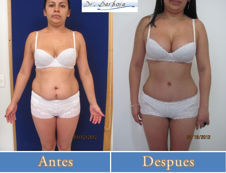 liposuccion o lipectomia con tummy tuck