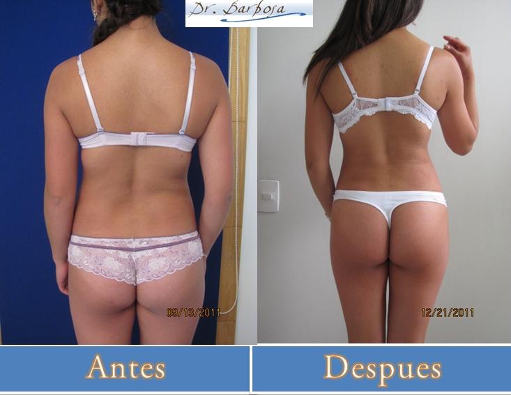 fotos de antes y despues de una lipectomia y tummy tuck en bogota