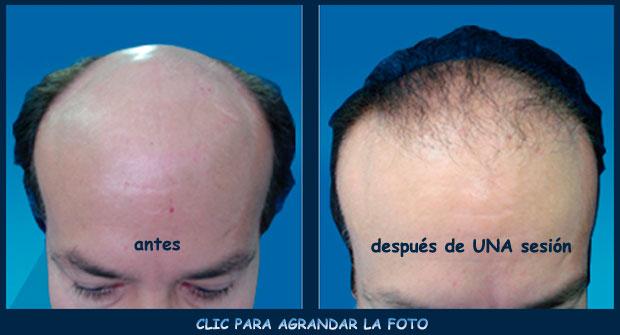 Implante-cabello-p