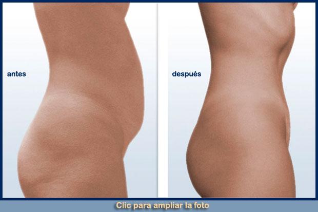 abdomen-plano-pe