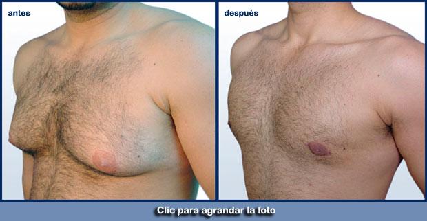 grasa-pecho-hombresp