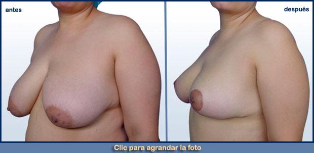 reduccion-senos-p