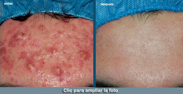 Acne-Dermosalud-p