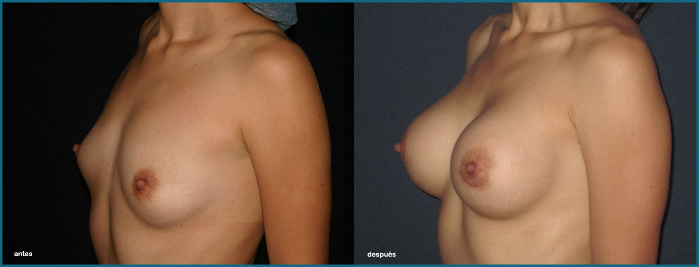 Costo para la mejora de los senos