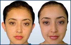 cirugiaestetica-jovenes-p