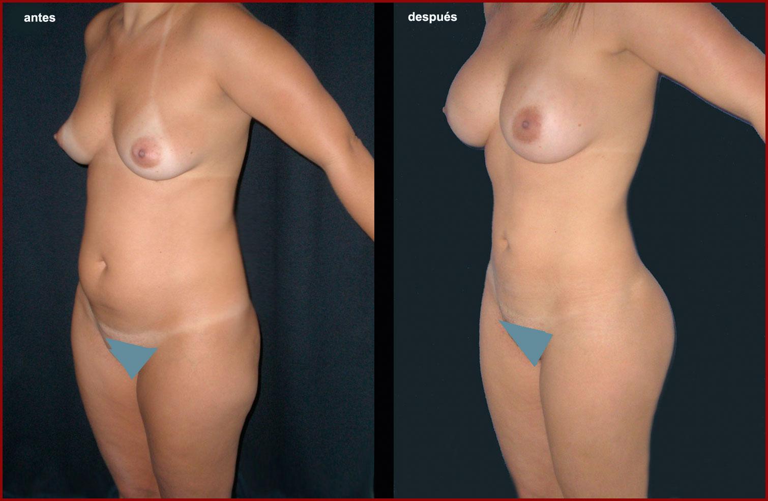 Descamarse la piel después de los granos sobre la persona