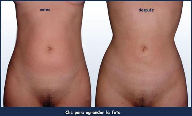 reducir-grasa-caderaGIL-1-p