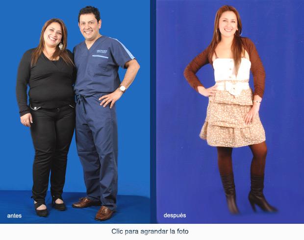 CirugiaBariatrica-p