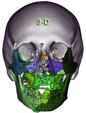 Cirugias-3D-300