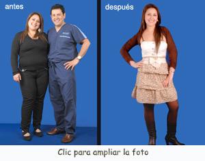 Obesidad-6-AD-300