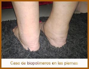 biopolimeros-pies-300