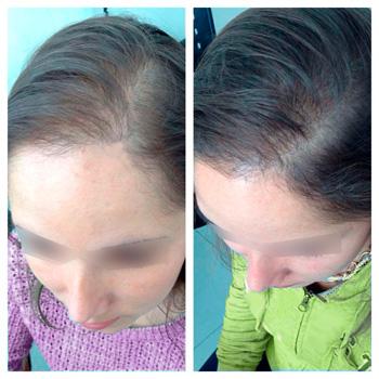 La infusión contra la caída de los cabello de la abuela agafi las revocaciones