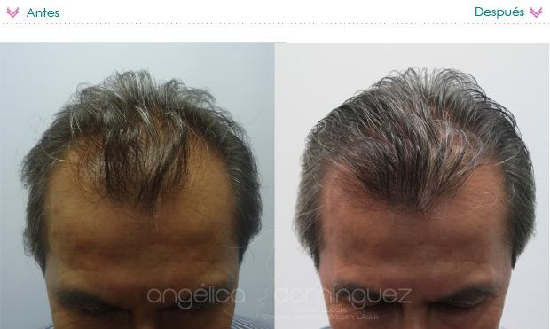Pertsovaya la máscara para los cabellos de la alopecia