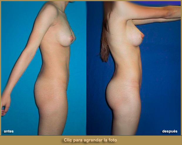 aumento-cola-implantes-p