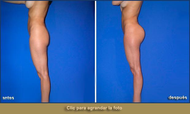 cirugia-gluteos-620