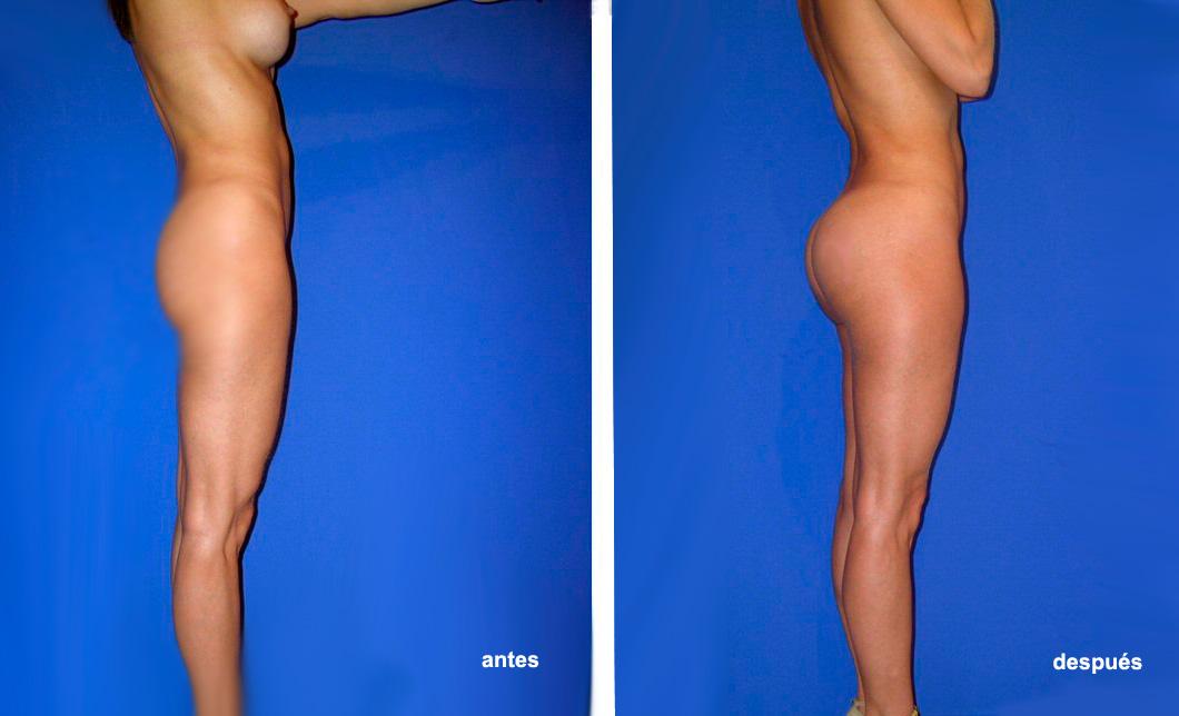 Implantes salinos versus silicona