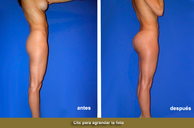 implante-gluteo-anatomicop