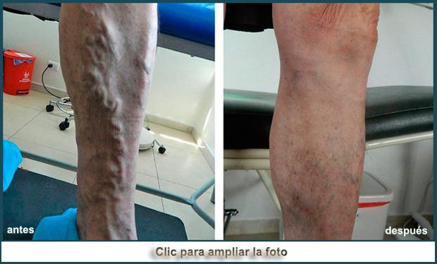 varices-sin-cirugia-enof-p
