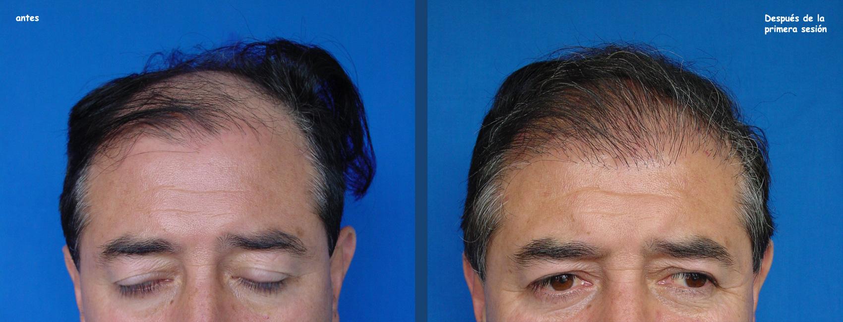 El crecimiento que refuerza y que estimula de los cabello de la máscara