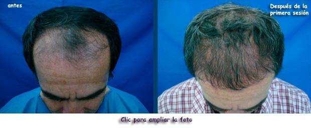 La máscara para el refuerzo de los cabello del kéfir las revocaciones
