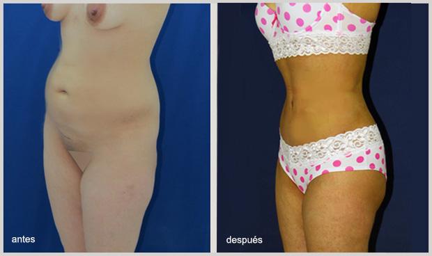 Reducir-cintura-2