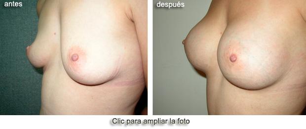 aumento-senos-OP-p