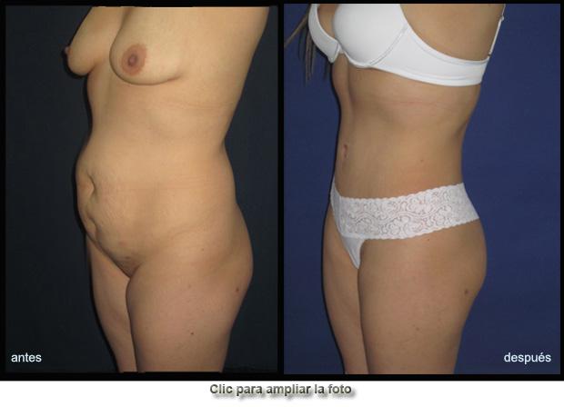 cirugia-abdomen-plano-p