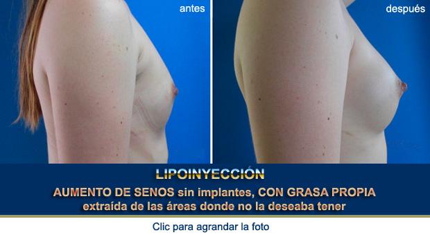 senos-atractivos-OP-p