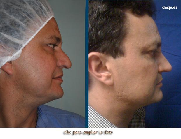 Cirugia-nariz-bogota-H-p