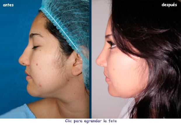 cirugia-nariz-bogota-620