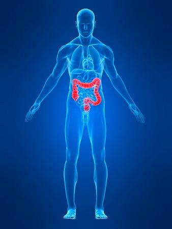 Cancer-de-colon-II