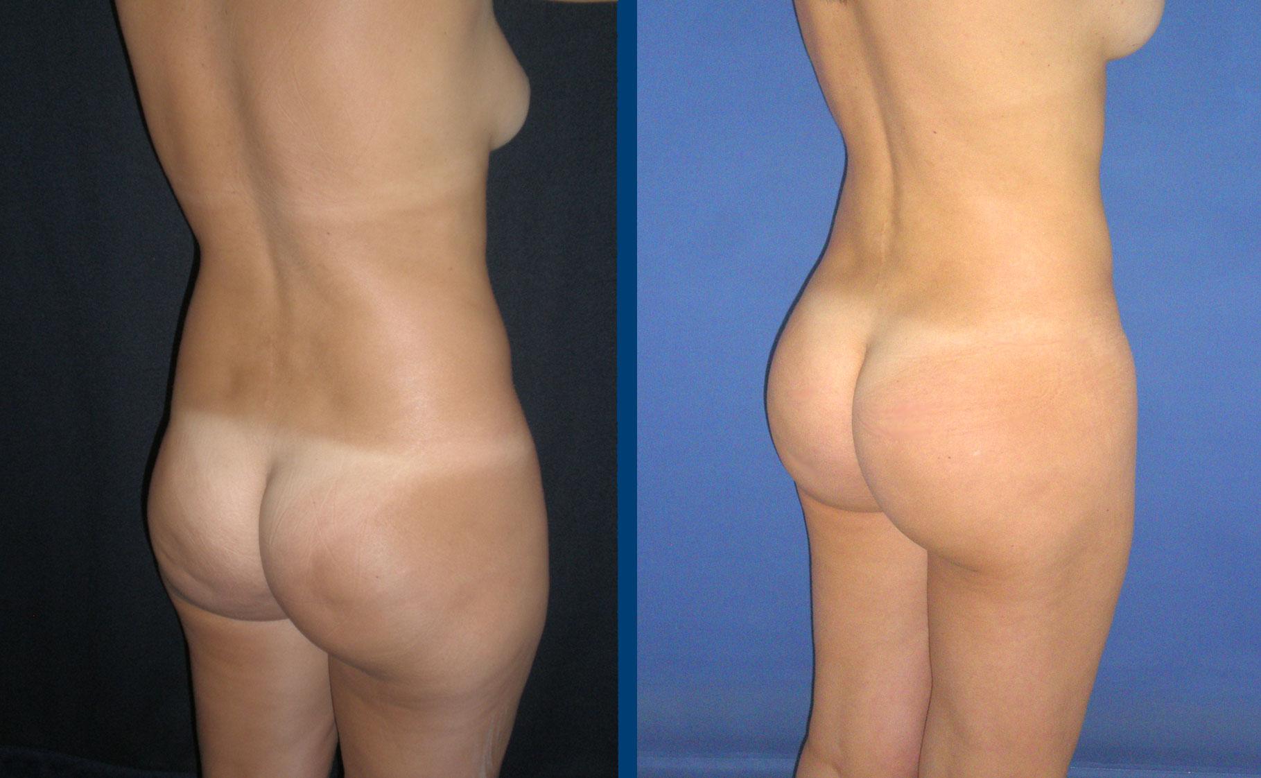 Como adelgazar los flancos abdominales