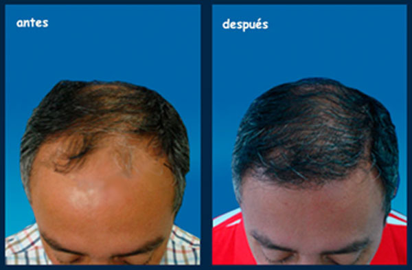 implante-capilar-antes-despues